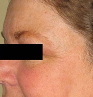 Laser treatment for discolouration, sun damage and