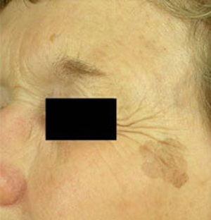 Laser-pigmentation-treatment-before2-wr