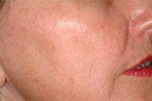 Laser-skin-resurface-treatment-after2-wr
