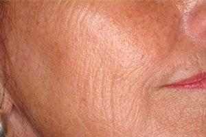 Laser-skin-resurface-treatment-before2-wr