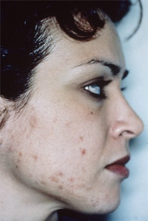Medical-microderm-before1-wr