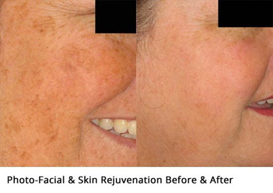 Photofacial-before-and-after1-wr