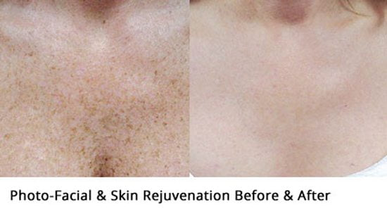 Photofacial-before-and-after2-wr