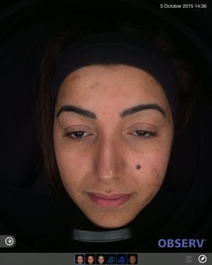 Skin-peel-acne-before2-wr