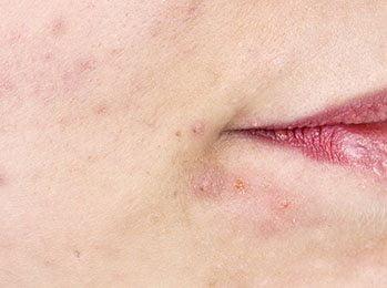 Teenager problem acne