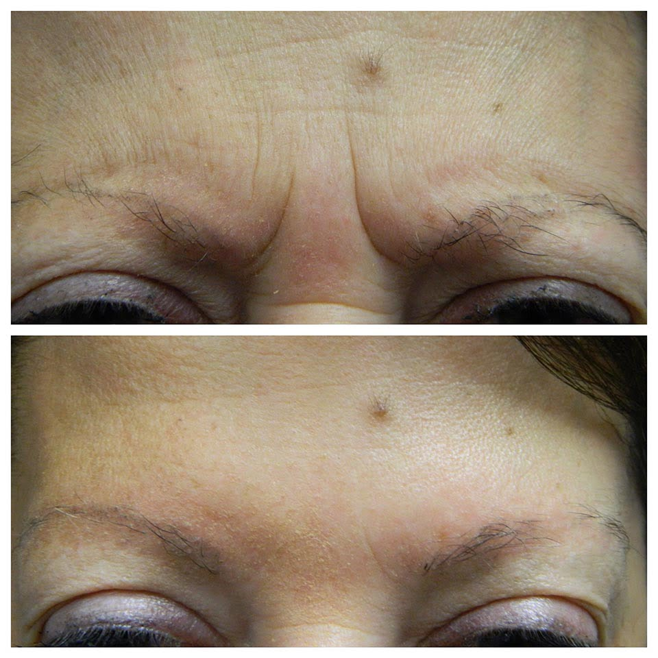 Anti wrinkle injections before and after