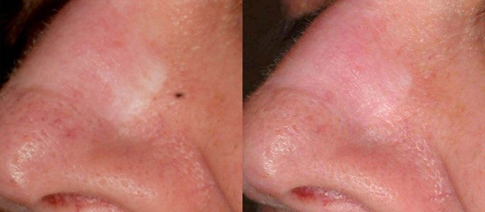 Before and after 2 treatment2