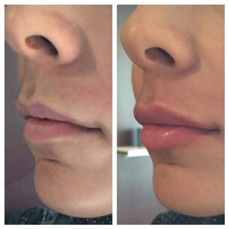 Before and after lip enhancement