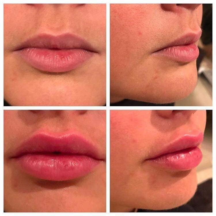 Lip filler results Skin Perfection London
