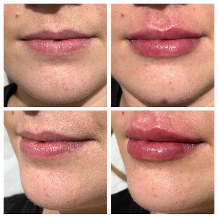 Lip enhancement results