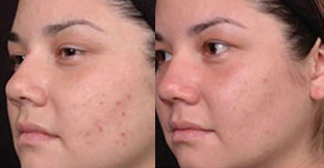 Acne before and after London