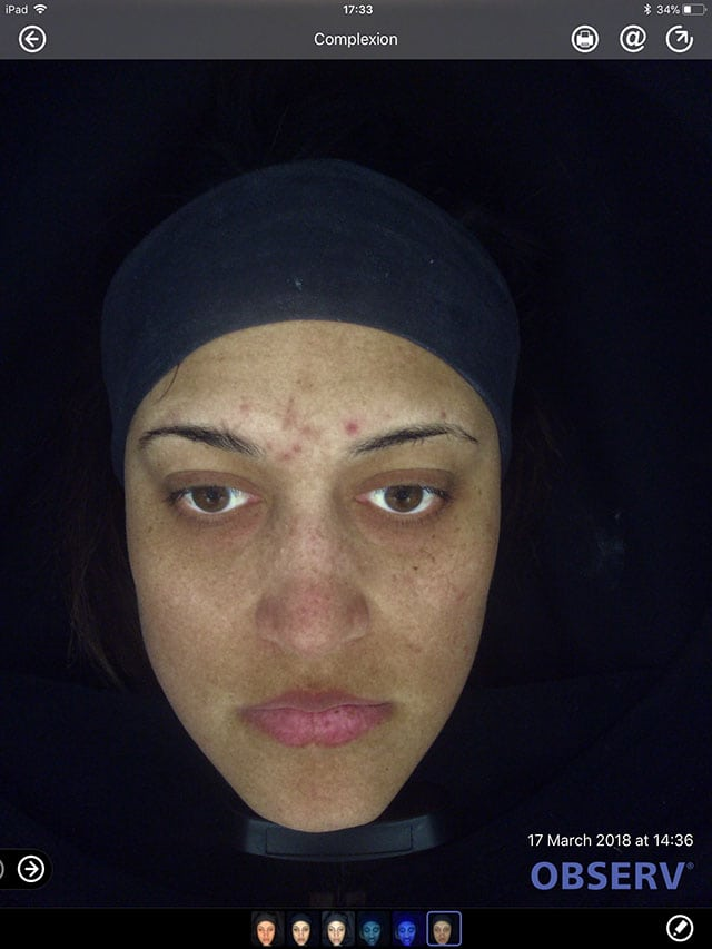 before acne treatment