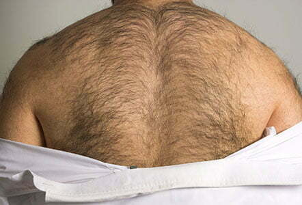 hairy back laser hair removal